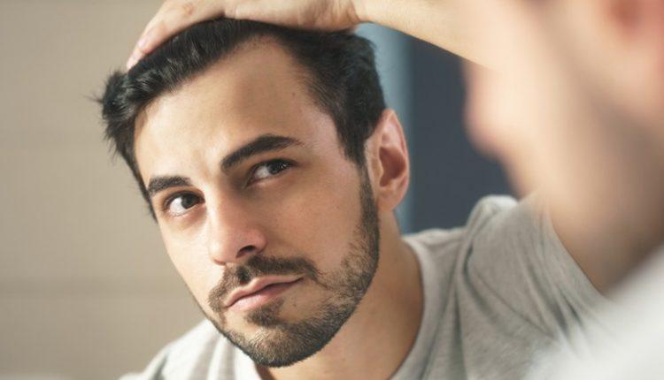 10 افسانه اشتباه دربارهی مو های مردان
